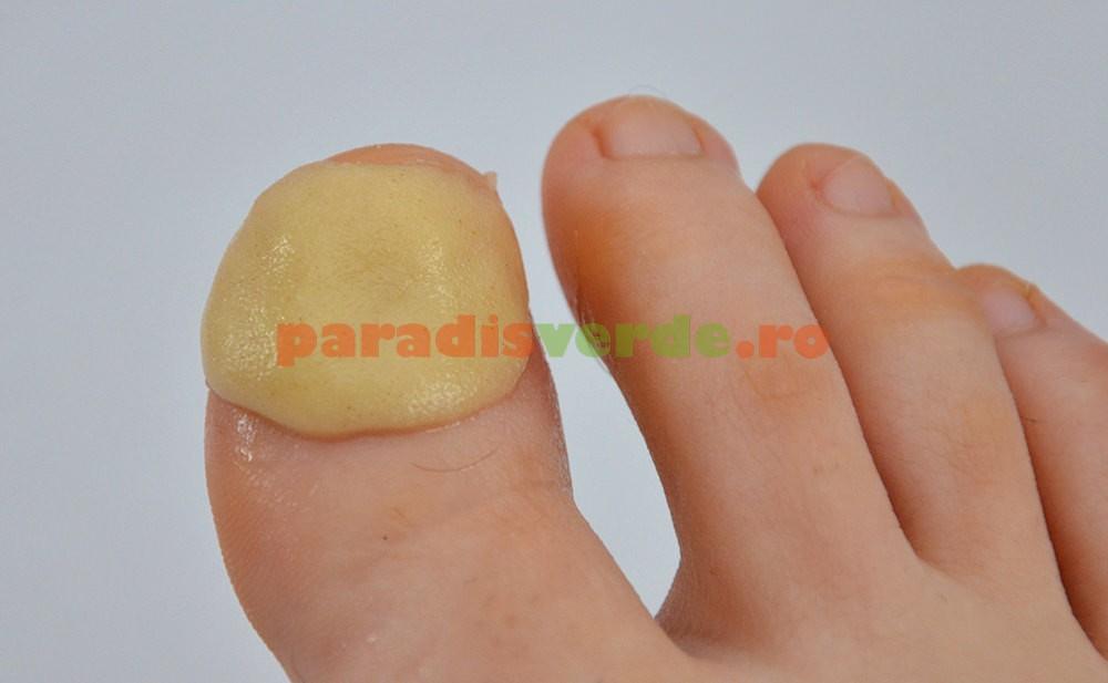 deget mare picior inflamat tratament
